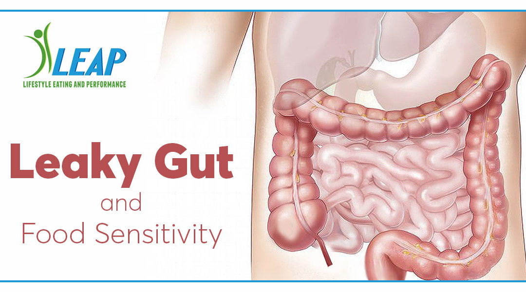 Leaky Gut and Food Sensitivity
