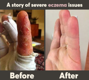 a story of severe eczema issues