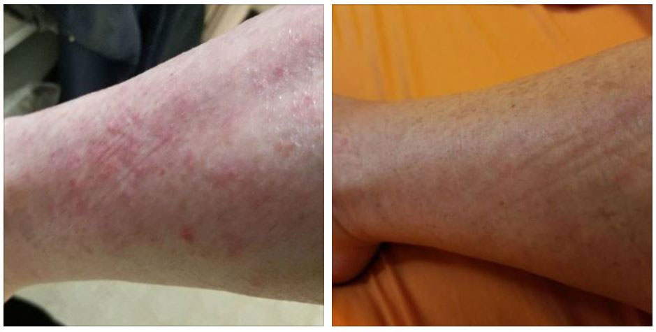 A Case of Psoriasis: 28-Year Struggle